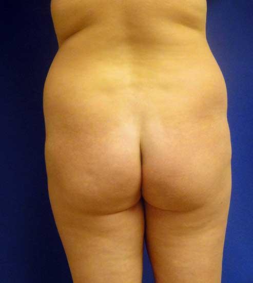 Brazilian Butt Lift Chicago   Buttock Augmentation Chicago