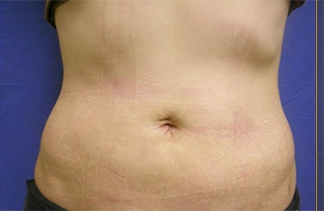 Liposuction Chicago   Liposuction Arlington Heights   Dr  Kotis
