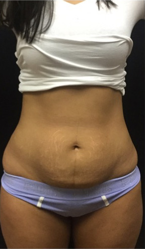 Mini Tummy Tuck Chicago | Arlington Heights Mini Tummy Tuck