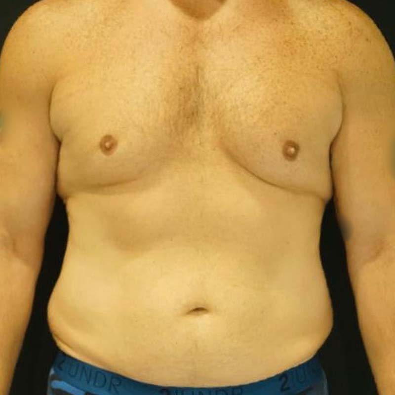 Tummy Tuck Before and After 01   Dr  Kotis